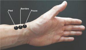 position des pouls radiaux